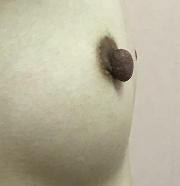 N クリニックの乳首・乳輪の整形の症例写真[ビフォー]