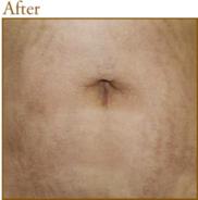 共立美容外科・歯科のアンチエイジング・美容点滴の症例写真[アフター]
