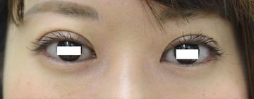 心斎橋コムロ美容外科クリニックの目・二重の整形の症例写真[アフター]