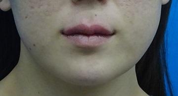 TCB東京中央美容外科の口元・唇の整形の症例写真[アフター]