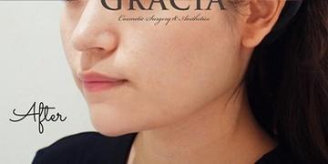 GRACIA clinic(グラシアクリニック) (旧L.O.V.E beauty clinic)の顔のしわ・たるみの整形(リフトアップ手術)の症例写真[アフター]