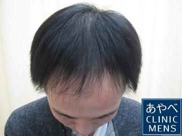 の薄毛治療・AGA・発毛の症例写真[ビフォー]