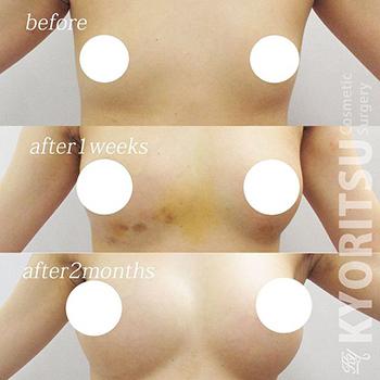 共立美容外科・歯科の豊胸・胸の整形の症例写真