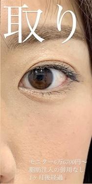 ルラ美容クリニックの目元整形・クマ治療の症例写真[アフター]