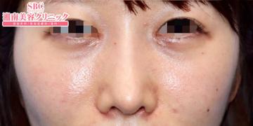 湘南美容クリニック奈良院の顔の整形(輪郭・顎の整形)の症例写真[アフター]