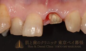 肌と歯のクリニック 東京ベイ幕張のインプラントの症例写真[ビフォー]