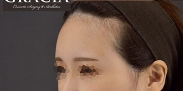 GRACIA clinic(グラシアクリニック)の輪郭・顎の整形の症例写真[アフター]
