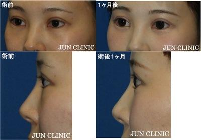 経結膜脱脂 脂肪注入 術後1ヶ月の症例写真