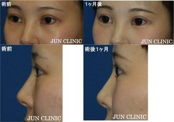 の目元の整形、くま治療の症例写真