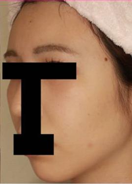 広島プルミエクリニックの顔の整形(輪郭・顎の整形)の症例写真[アフター]