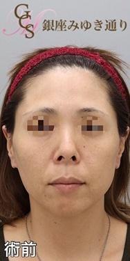 銀座みゆき通り美容外科 大阪院のシワ・たるみ(照射系リフトアップ治療)の症例写真[ビフォー]