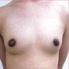 ■脂肪注入法+PRP療法の症例写真[ビフォー]