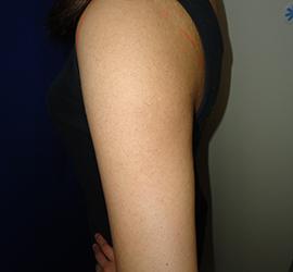 オザキクリニックLUXE新宿のその他の美容皮膚科治療の症例写真[アフター]