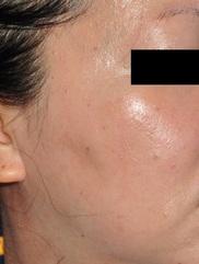 ブリスクリニック形成外科・美容外科・美容皮膚科福岡の症例写真[アフター]
