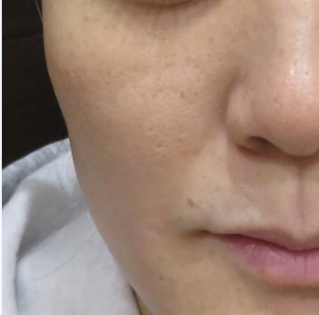 はなふさ皮膚科のニキビ治療・ニキビ跡の治療の症例写真[アフター]