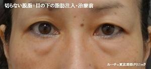ルーチェ東京美容クリニック 池袋院の目元の整形、くま治療の症例写真