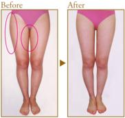 共立美容外科・歯科の症例写真