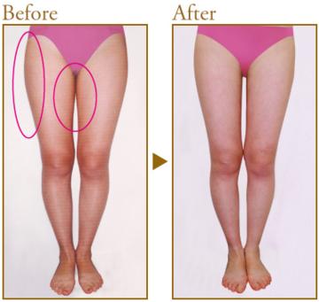 共立美容外科・歯科の脂肪吸引の症例写真
