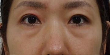 SELECT CLINIC(セレクトクリニック)の目元の整形、くま治療の症例写真[ビフォー]