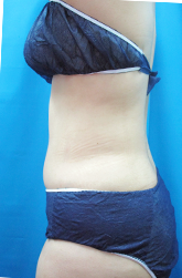 ガーデンクリニックの脂肪吸引の症例写真[アフター]