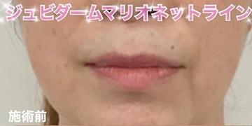 ルラ美容クリニックの顔の整形(輪郭・顎の整形)の症例写真[ビフォー]