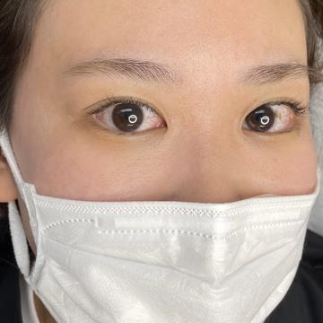 姫路メディカルクリニックのアートメイクの症例写真[ビフォー]