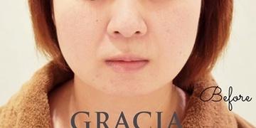 GRACIA clinic(グラシアクリニック) (旧L.O.V.E beauty clinic)の脂肪吸引の症例写真[ビフォー]