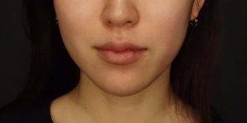 SELECT CLINIC(セレクトクリニック)のシワ・たるみ(照射系リフトアップ治療)の症例写真[アフター]