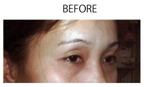 恵聖会クリニックの目元の整形、くま治療の症例写真[ビフォー]