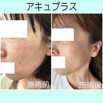 札幌クララ美容皮膚科のシミ取り・肝斑・毛穴治療の症例写真