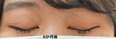 19再 女性 目頭切開 Z法 No.2の症例写真[アフター]