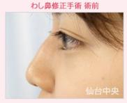 仙台中央クリニックの鼻の整形の症例写真[ビフォー]