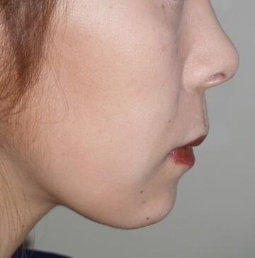 タウン形成外科クリニックのシワ・たるみ(照射系リフトアップ治療)の症例写真[アフター]