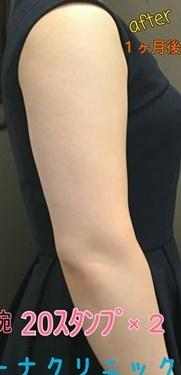 CHRISTINA clinic GINZA(クリスティーナクリニック銀座)の痩身、メディカルダイエットの症例写真[アフター]