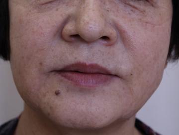 熊本かよこクリニックの顔のしわ・たるみの整形(リフトアップ手術)の症例写真[アフター]