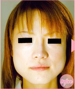 ■ボトックス注射(エラ)の症例写真[ビフォー]