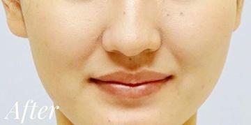 表参道スキンクリニックのホクロ除去・あざ治療・イボ治療の症例写真[アフター]