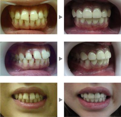 すきっ歯治療の症例写真の症例写真