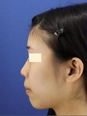 プロテーゼ、鼻先の形成(肋軟骨) 術後1ヶ月[ビフォー]