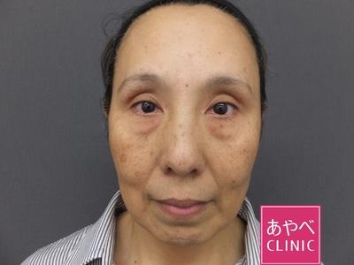 ヒアルロン酸注入(目の下・ほうれい線・あご)の症例写真[ビフォー]