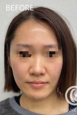 GLANZ CLINIC (グランツクリニック)の顔のしわ・たるみの整形(リフトアップ手術)の症例写真[ビフォー]