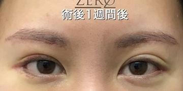 東京ゼロクリニック銀座の目・二重整形の症例写真[アフター]
