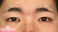 湘南美容クリニック静岡院の目・二重の整形の症例写真[ビフォー]