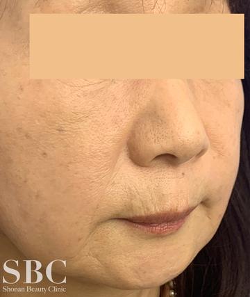 湘南美容クリニック 姫路院の顔のしわ・たるみの整形の症例写真[アフター]