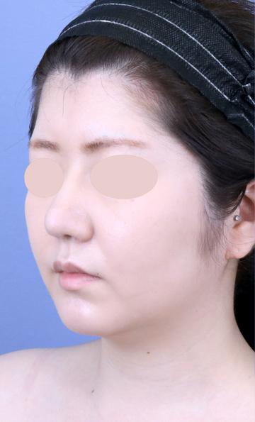 湘南美容クリニック 新宿本院の脂肪吸引の症例写真[ビフォー]