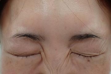 ゆきおかクリニックの顔のしわ・たるみの整形(リフトアップ手術)の症例写真[アフター]
