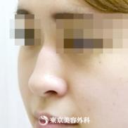 東京美容外科の鼻の整形の症例写真[ビフォー]