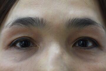 みずほクリニックの目元の整形、くま治療の症例写真[アフター]
