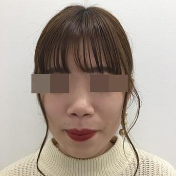 東郷美容形成外科 福岡の鼻の整形の症例写真[ビフォー]