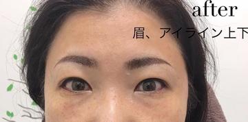 高輪皮膚科・形成外科のアートメイクの症例写真[アフター]